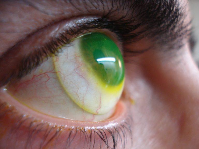 Ciclistas – Solução para doenças oculares ao pedalar
